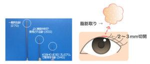 KOSHO式脂肪取りショートダウンタイム・プレミアム二重術(KOSHO式脂肪取りSDプレミアム二重術)