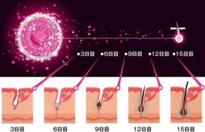 Dr.CYJヘアーフィラーによる発毛のメカニズム