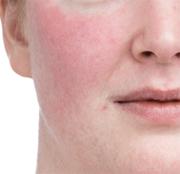 赤ら顔治療のご案内